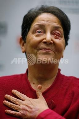 自分の歯を目に移植、失明から視力回復 米女性 写真6枚 国際ニュース:AFPBB News