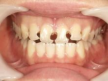 女性前歯4本のセラミック治療: インプラント・歯周病治療なら高い技術の「おがわ歯科医院」
