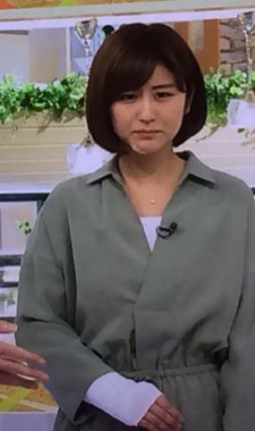宇賀なつみアナが顔に絆創膏、手に包帯姿でモーニングショーに出演。「花見で飲酒してないのに骨折」