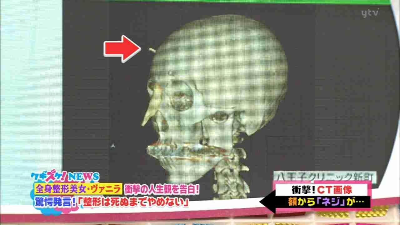 【閲覧注意】整形サイボーグ・ヴァニラがアゴ削りすぎ…?肉体の限界を心配する声