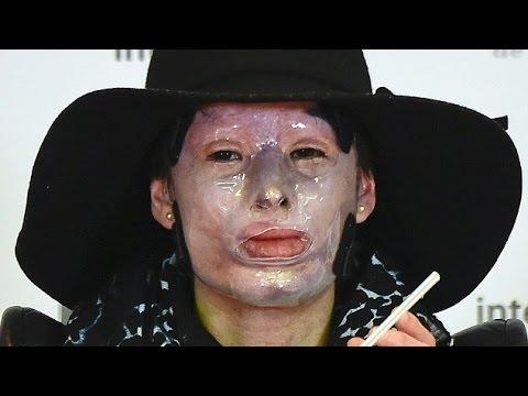 【閲覧注意】美人女性の顔に硫酸 アシッドアタックの恐怖 - YouTube