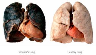 「女がタバコを吸い始める理由」2位ストレス、1位は…