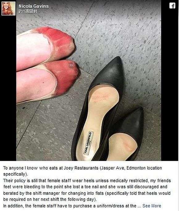 【女はつらいよ】ハイヒールで立ち仕事をしていた女性がSNSで「トンでもない状態になった足」を公開し話題に! | ロケットニュース24