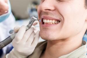 3ヶ月に一度!歯医者でPMTCを行った方がいい6つの理由と費用や手順