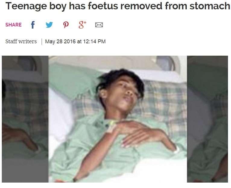 15歳少年の腹部から双子のもう一人 頭部、手足、生殖器も(マレーシア)