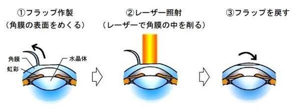 【トレンド日本】視力を矯正するレーシック手術が激減していた! ピーク時の9分の1 その真相を探ってみると… (1/3ページ) - 産経ニュース