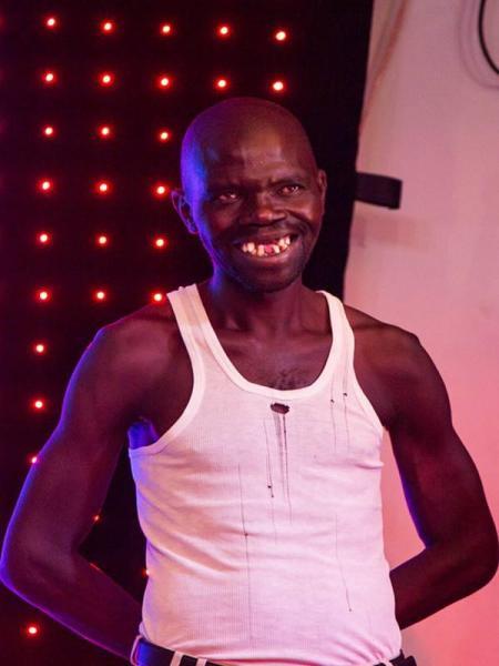 ジンバブエで最も醜い男性、前歯がほぼないインパクトの強さで優勝