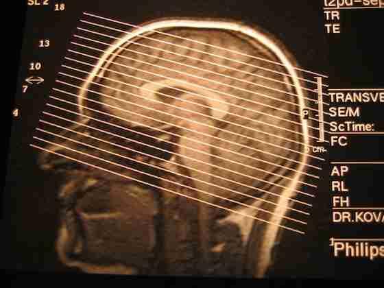 男性の脳は老いやすく女性より老害化しやすい、大学研究で判明 感情コントロール能力が低下