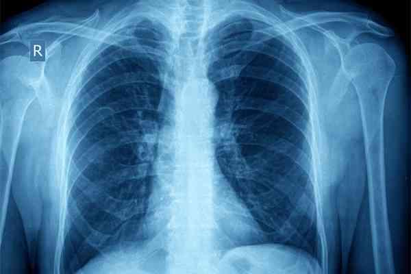 がん治療「革命」の旗手!  夢の薬「オプジーボ」はこんなに効く 皮膚がんに続き、肺がんにも保険適用 | 賢者の知恵 | 現代ビジネス [講談社]