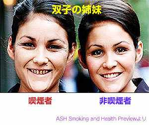 タバコがやめられない方