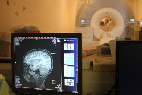 アルツハイマー病、脳の変化は幼少期に 米医学誌 - WSJ