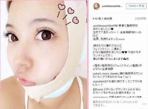 整形公表の双子モデル・吉川ちかの術後を直撃!「恐ろしくなった」