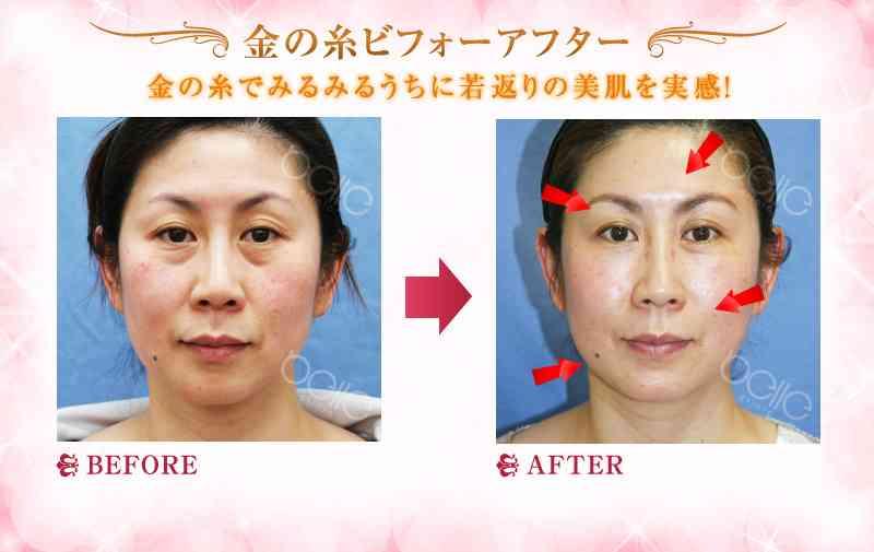 「金の糸」挿入手術でMRI検査受診不可に 大阪府の女性が美容クリニックを提訴 大阪地裁