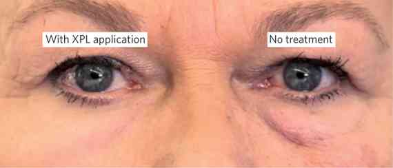 たるんだ肌を若返らせる薄膜 透明なシリコンポリマーが開発される