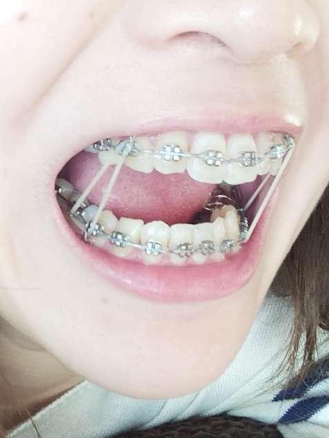 歯列矯正してる方