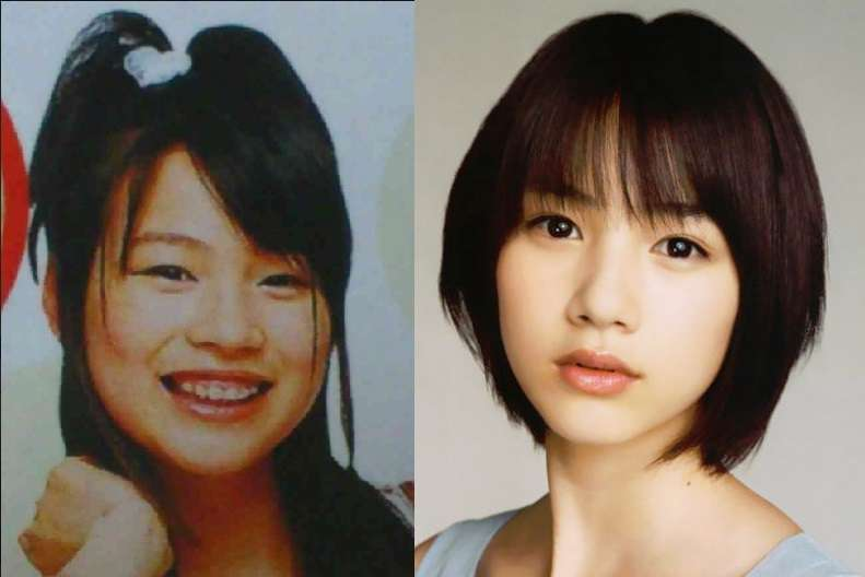 整形してないのに、子供の頃と比べて顔が変わった人ー!