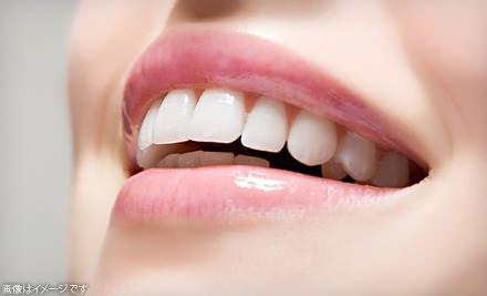 歯に着色しやすい人