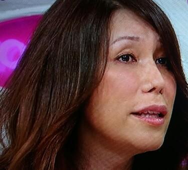KABA.ちゃん 声の女性化手術に30万 顔だけで高級車1台、その他200万