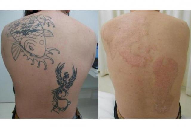 医師が語る「タトゥー除去の実態」 一番いいのはいれないこと - ライブドアニュース