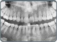 広瀬院長の弘前ブログ: 歯根吸収
