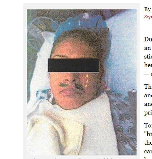 医師が麻酔中の患者にいたずらをして画像をネットに公開。医師「楽しんでくれると思った」