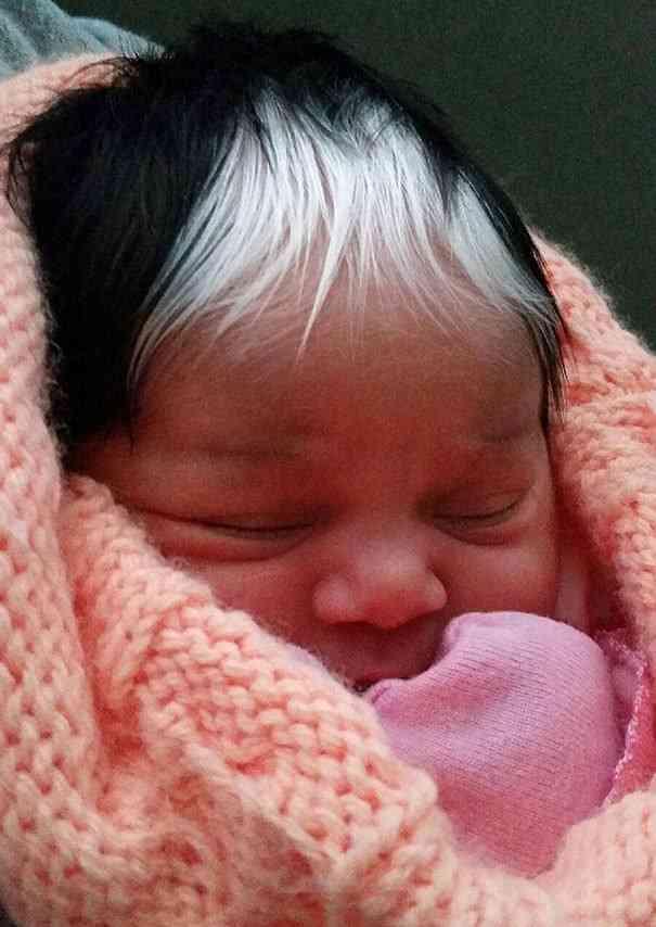 前髪だけ美しい白髪の赤ちゃん。このヘアに隠された秘密がなかなか深い