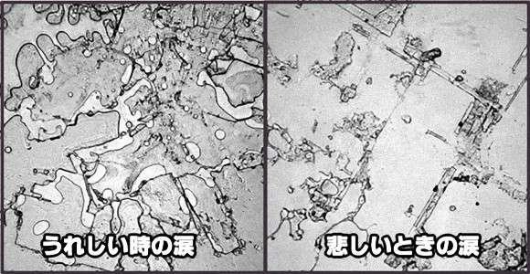 うれし涙と悲し涙ではこんなに違う。人間の涙を顕微鏡で観察した「涙のトポグラフィー」 : カラパイア