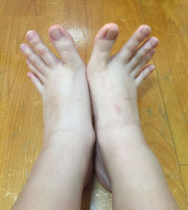 この指は「足」か「手」か判断に悩む写真が世界中で物議
