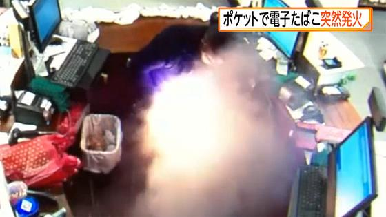 ポケットの中の電子タバコが突然発火 男性けが 米・NY