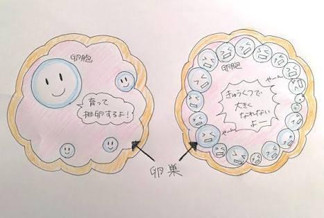 多嚢胞性卵巣で妊娠された方!