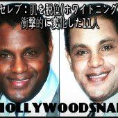 黒人セレブ:肌を脱色(ホワイトニング)して衝撃的に白くなった11人 – hollywoodsnap