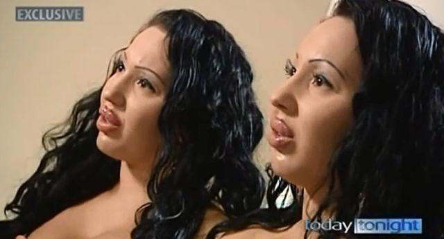 2000万円以上を整形に費やしてきた双子姉妹 まさかの「全部後悔している」