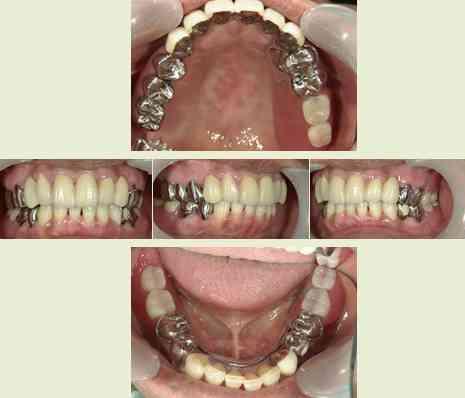 歯医者で誤診された事ある?