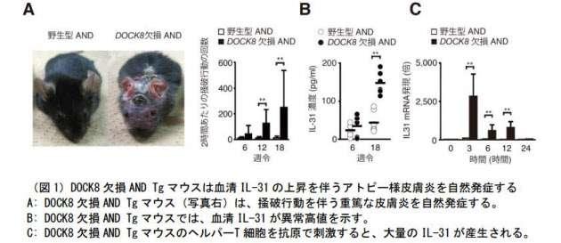 九大、アトピー性皮膚炎発症に関わる痒み物質の産生に重要なタンパク質を発見  :日本経済新聞