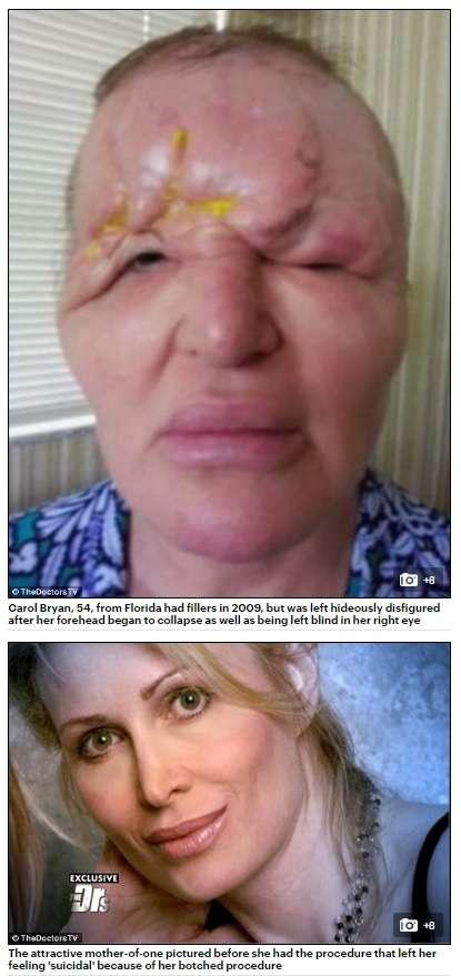 【海外発!Breaking News】「まるでエイリアンだった」 美容整形手術で顔面が膨張 片目を失明した54歳女性の悲劇(米)