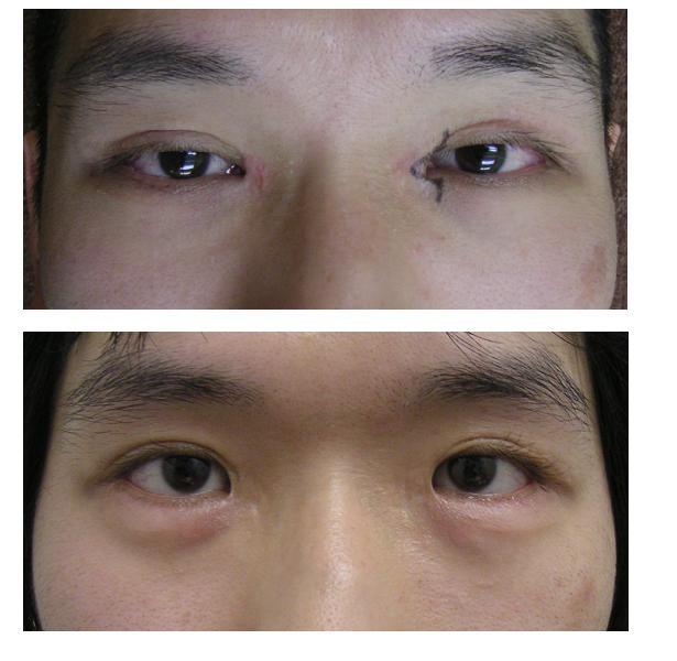 目頭切開修正術、涙袋形成術 : 美容外科医のモノローグ