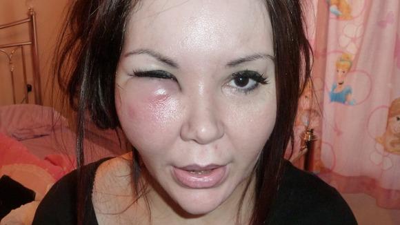 【閲覧注意】美容整形手術失敗で死亡、後遺症で苦しむ人々 | 美容整形ちゃんねる