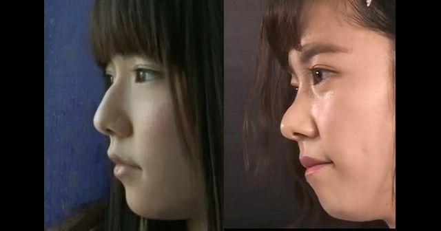 元AKB島崎遥香、鼻を1センチ削る整形をしていたことが判明!全く別人に…(画像) | 黒子速報