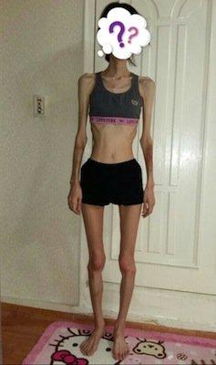 【閲覧注意】 「まるでミイラ……」頬骨削り手術の副作用で、体重が27kgに(韓国)