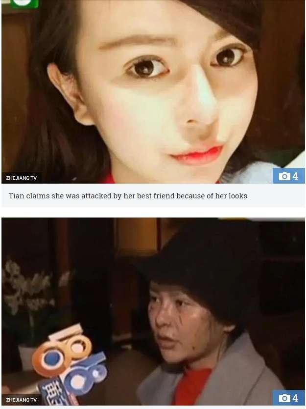 【海外発!Breaking News】「キレイになりすぎよ」整形美女の友達を嫉んだ女 顔を切りつける(中国) | Techinsight|海外セレブ、国内エンタメのオンリーワンをお届けするニュースサイト