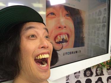 歯並び矯正した芸能人のビフォーアフター画像を貼るトピ