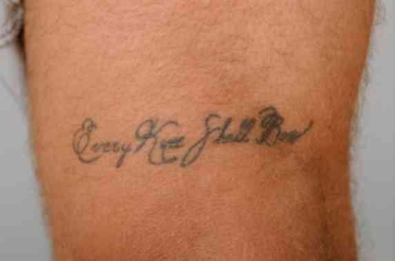 タトゥー(刺青)を入れているとMRI検査が受けられない、という話は本当かな? | 五本木クリニック | 院長ブログ