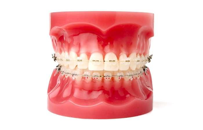 歯の裏側矯正