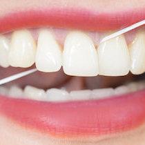 衝撃報告! デンタルフロスに虫歯予防の効果なし~実は多くの人が正しく使えていない! | ビジネスジャーナル