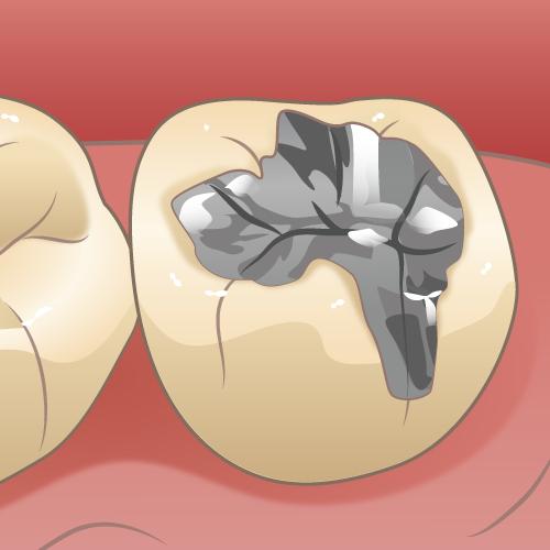 聞きにくいケド…。皆さん、どれくらい虫歯経験ありますか?