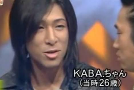 <KABA.ちゃん>「整形しすぎ」心配の声に「なりたい顔にならなかったから…」
