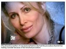 【閲覧注意】「まるでエイリアンだった」 美容整形手術で顔面が膨張 片目を失明した54歳女性の悲劇(米)
