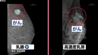 「マンモグラフィで発見できず」乳がん検診変わる?