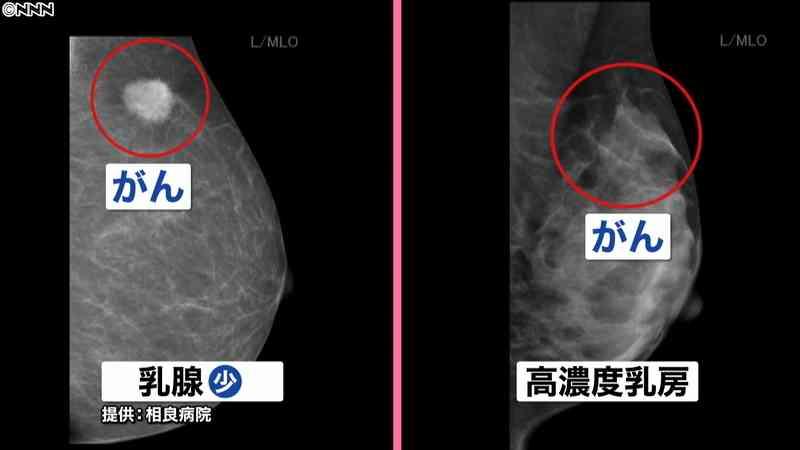 「マンモで発見できず」乳がん検診変わる?(日本テレビ系(NNN)) - Yahoo!ニュース