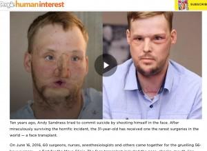 【閲覧注意】ライフル銃自殺で顔半分が崩壊の男性、10年を経て顔面移植を受ける(米)